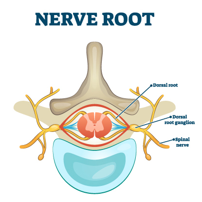 dorsal root ganglion anatomy surgery options